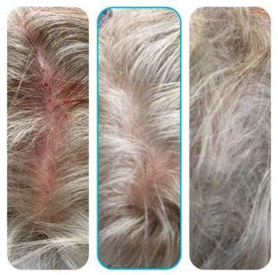 Hair-Restoration-After-1 copy