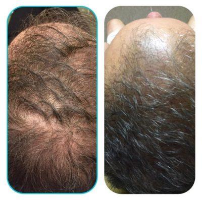 Hair-Restoration-Before-1
